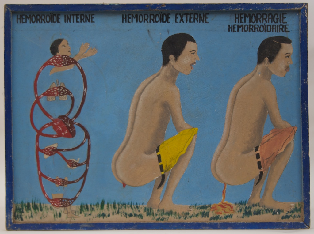 One of a series of signs advertising products to treat a variety of medical problems, this one shows 3 forms of hemorrhoids.